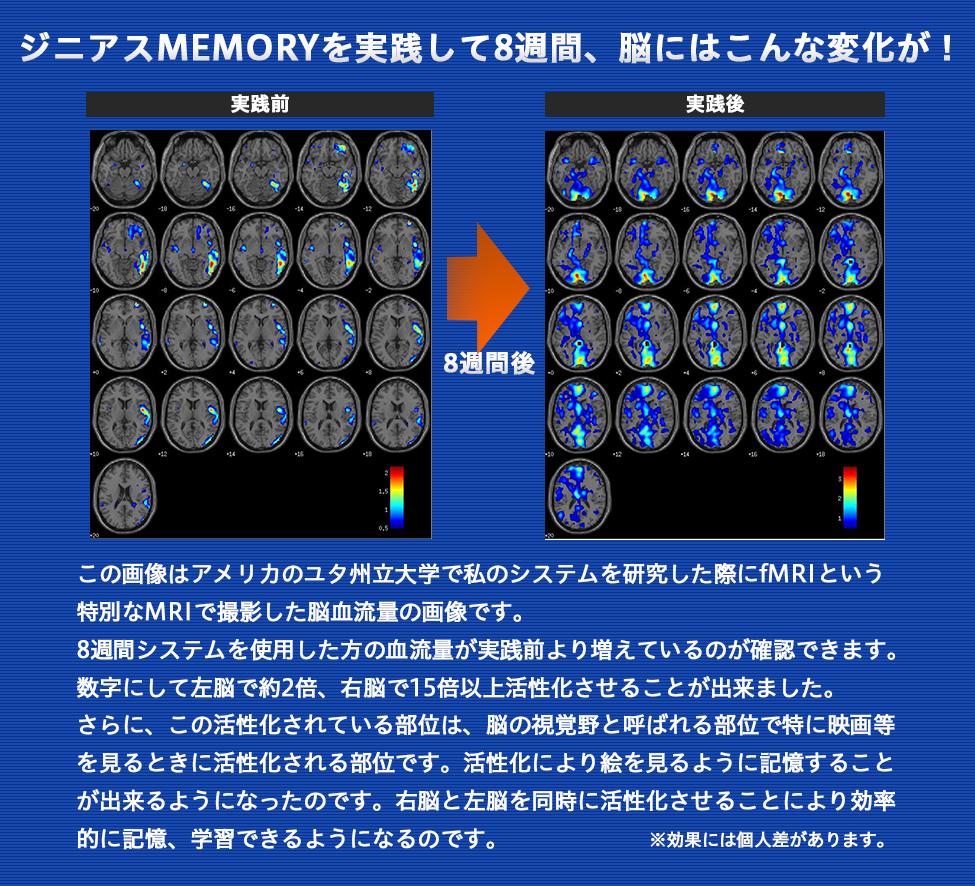 ジニアスMEMORYを実践して8週間、脳にはこんな変化が!